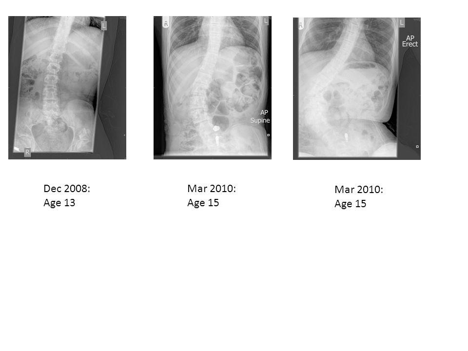 Dec 2008: Age 13 Mar 2010: Age 15