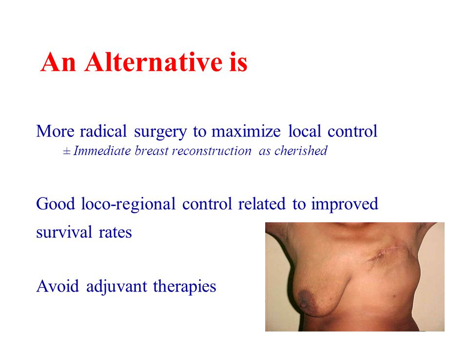 An Alternative is More radical surgery to maximize local control ± Immediate breast reconstruction as cherished Good loco-regional control related to improved survival rates Avoid adjuvant therapies
