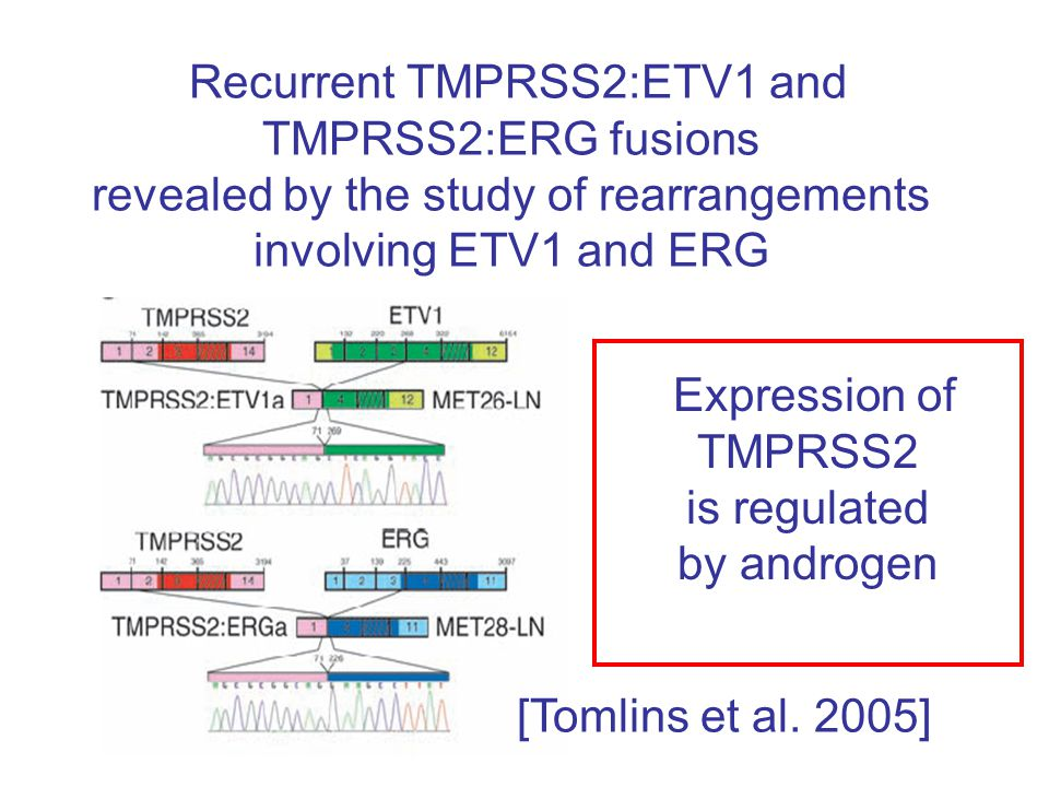 Recurrent TMPRSS2:ETV1 and TMPRSS2:ERG fusions revealed by the study of rearrangements involving ETV1 and ERG Expression of TMPRSS2 is regulated by androgen [Tomlins et al.
