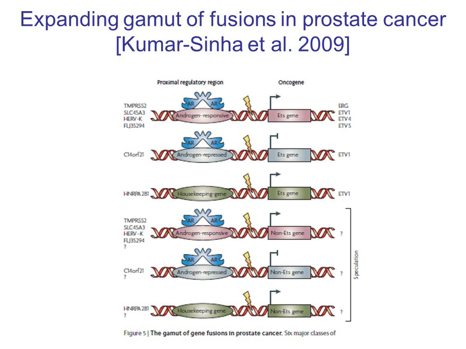 Expanding gamut of fusions in prostate cancer [Kumar-Sinha et al. 2009]