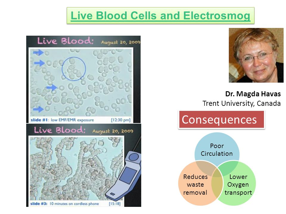 Live Blood Cells and Electrosmog Dr.