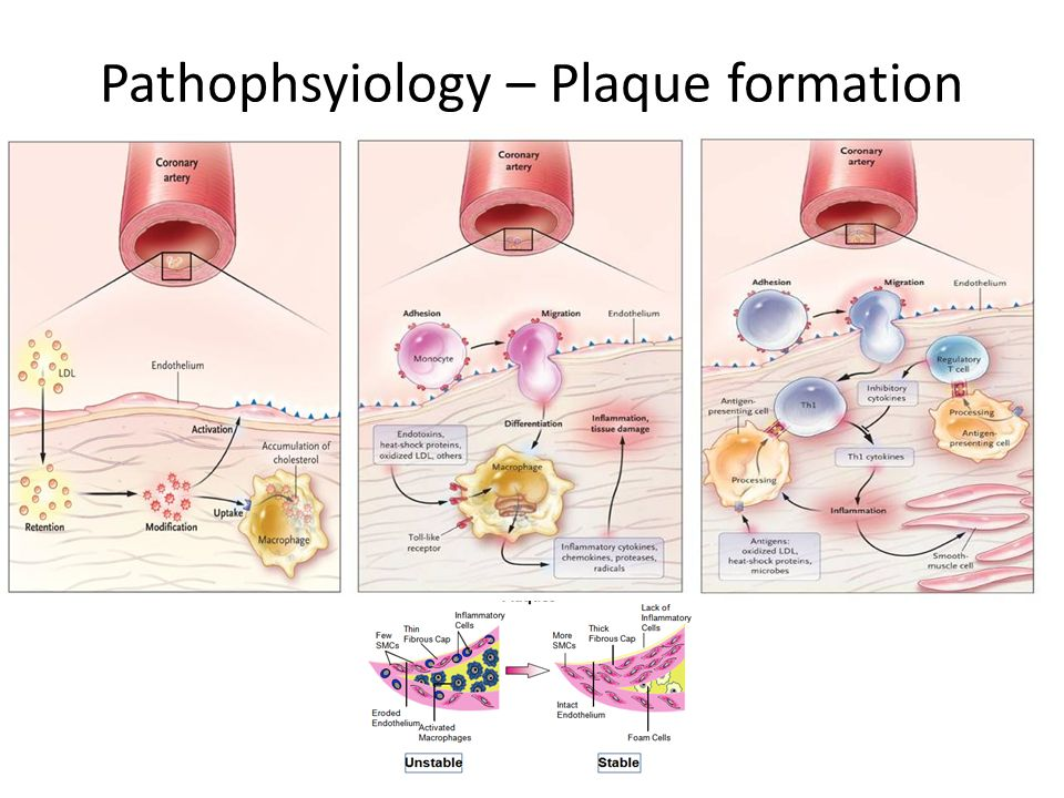 Pathophsyiology – Plaque formation