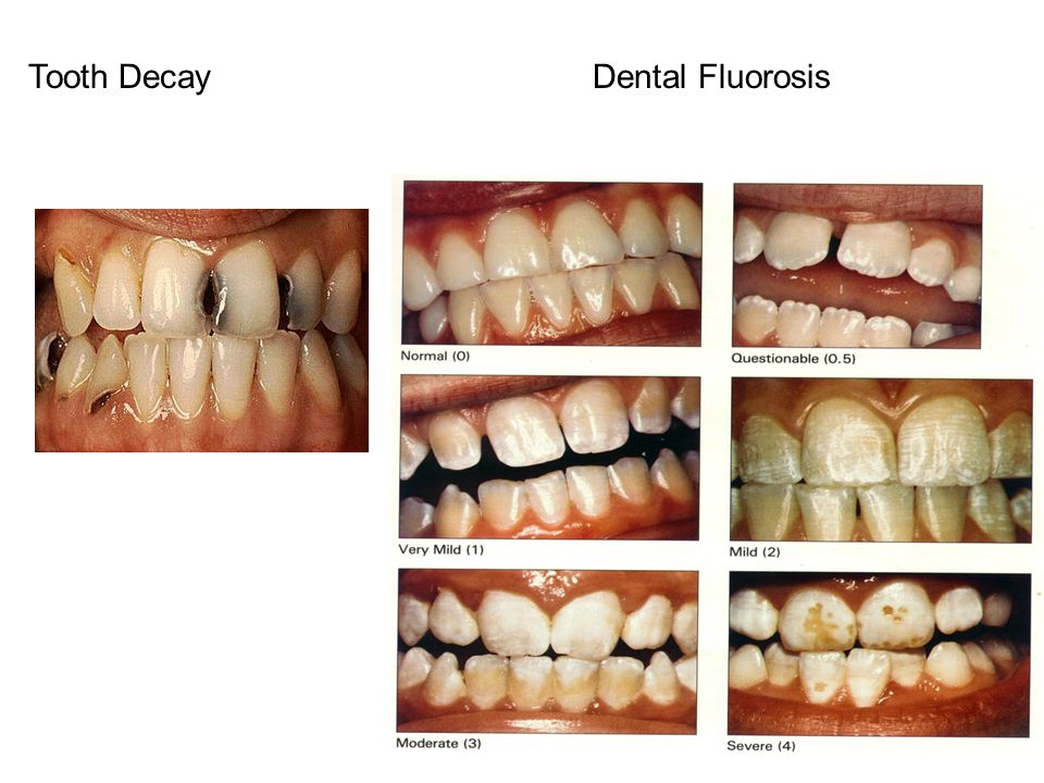 Tooth Decay Dental Fluorosis