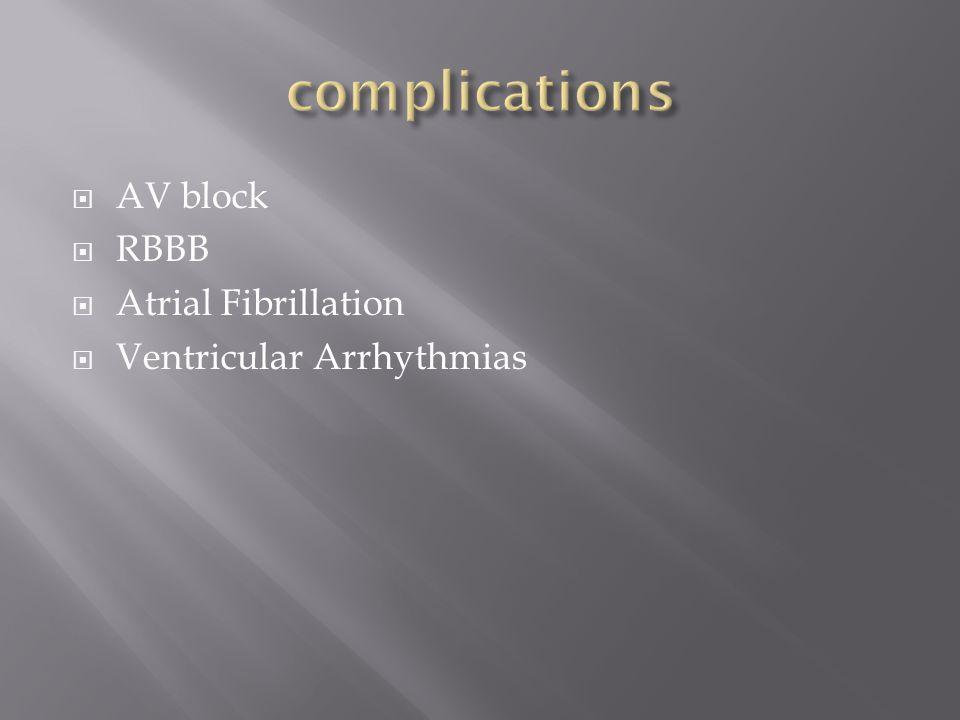  AV block  RBBB  Atrial Fibrillation  Ventricular Arrhythmias