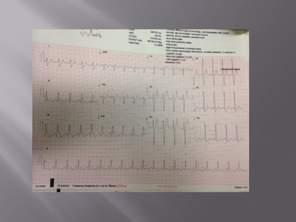  Discharged with some memory issues  OPD March  NRH assessment  Cardiac Rehab  Repeat CMR  Reassess for ICD