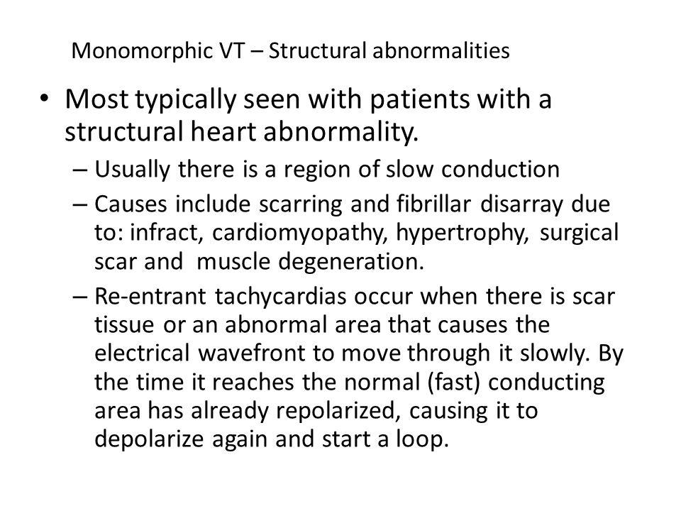 Monomorphic VT – non structural abnormalities A minority of pt with monomorphic VT have structurally normal hearts (idiopathic VT).