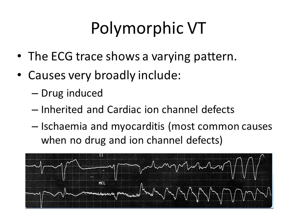 Polymorphic VT - Torsades de pointes Torsades de pointes is a polymorphic VT following a long resting long QT interval (>0.44 seconds).