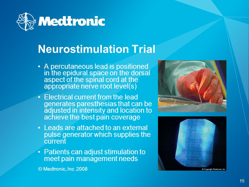 15 © Medtronic, Inc. 2008 A percutaneous lead is positioned in the epidural space on the dorsal aspect of the spinal cord at the appropriate nerve roo