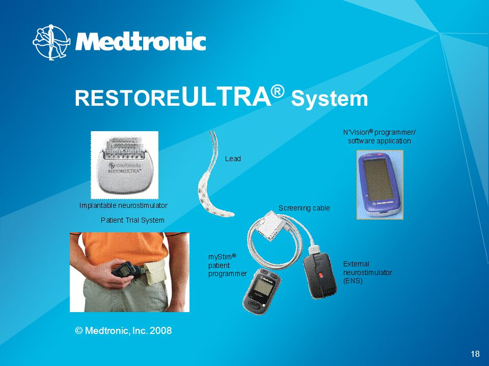 18 © Medtronic, Inc. 2008 RESTORE ULTRA ® System