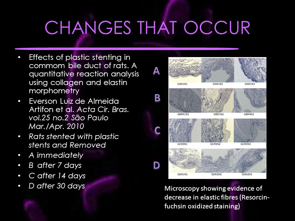 CHANGES THAT OCCUR Effects of plastic stenting in commom bile duct of rats.