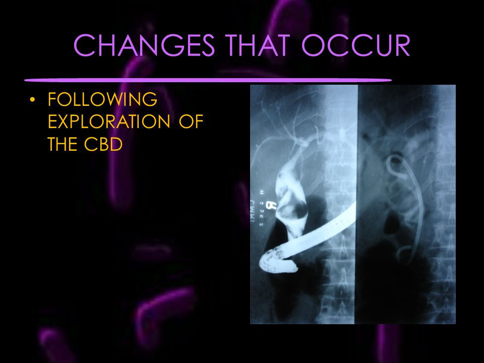 CHANGES THAT OCCUR FOLLOWING EXPLORATION OF THE CBD