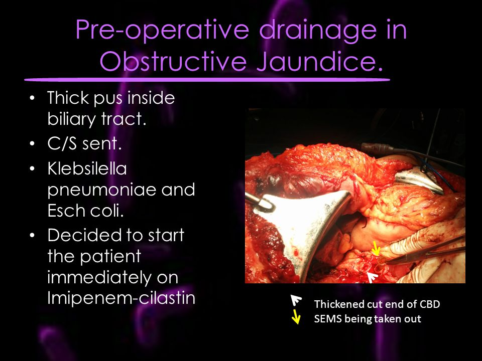 Pre-operative drainage in Obstructive Jaundice.
