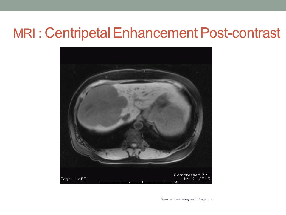 MRI : Centripetal Enhancement Post-contrast Source: Learning radiology.com