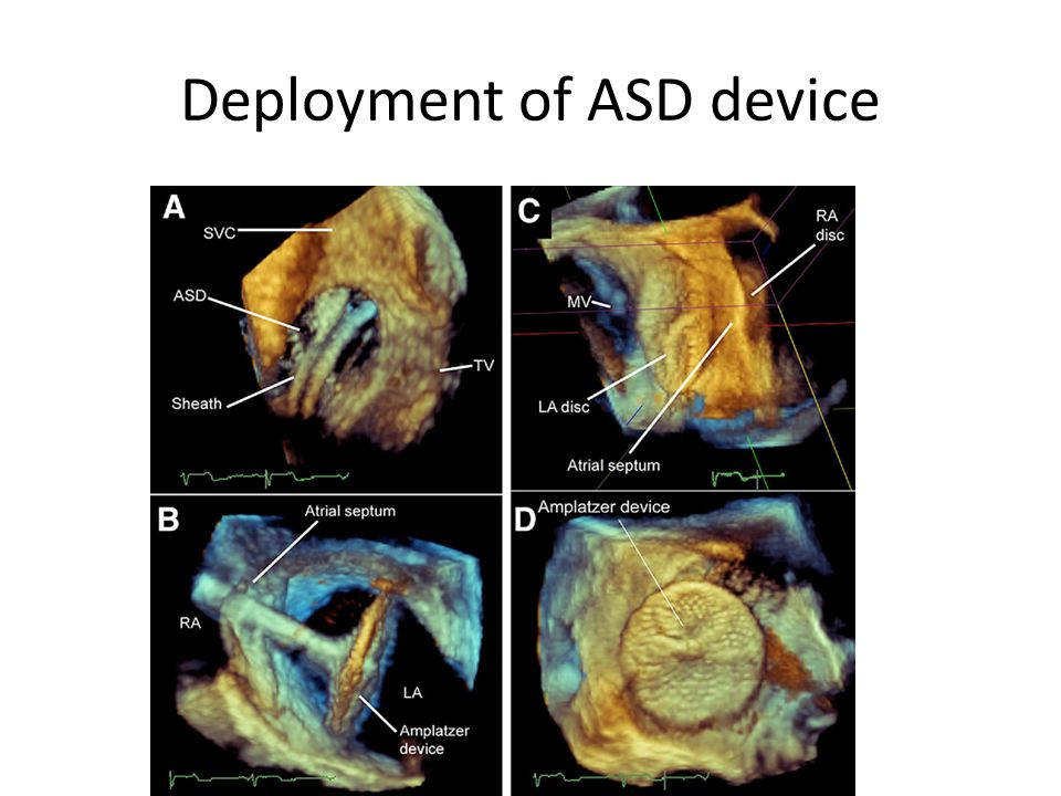 Deployment of ASD device