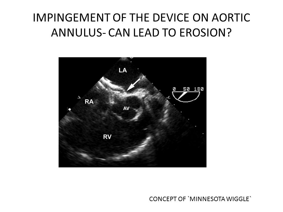 IMPINGEMENT OF THE DEVICE ON AORTIC ANNULUS- CAN LEAD TO EROSION? CONCEPT OF `MINNESOTA WIGGLE`