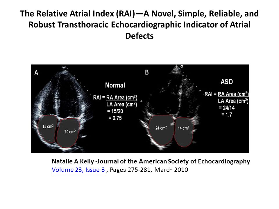 The Relative Atrial Index (RAI)—A Novel, Simple, Reliable, and Robust Transthoracic Echocardiographic Indicator of Atrial Defects Natalie A Kelly -Journal of the American Society of Echocardiography Volume 23, Issue 3, Pages 275-281, March 2010 Volume 23, Issue 3