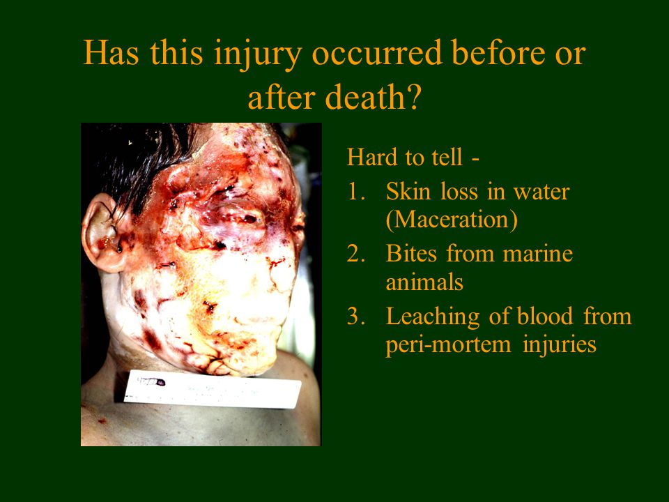 Has this injury occurred before or after death.