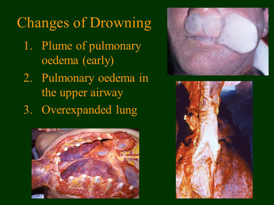 Changes of Drowning 1.Plume of pulmonary oedema (early) 2.Pulmonary oedema in the upper airway 3.Overexpanded lung