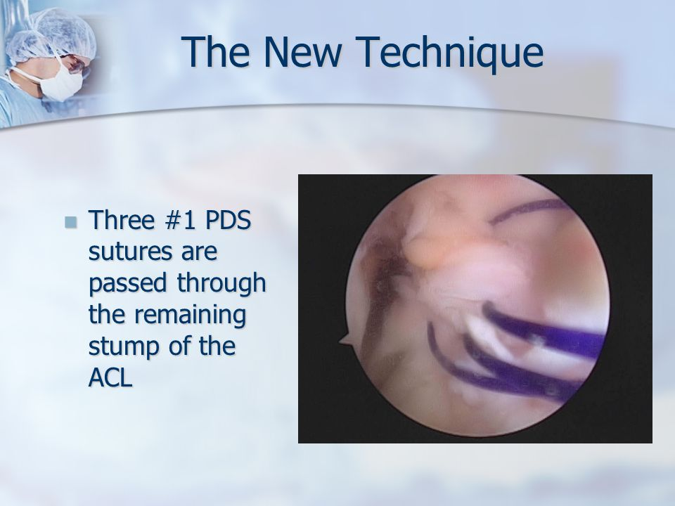The New Technique Three #1 PDS sutures are passed through the remaining stump of the ACL Three #1 PDS sutures are passed through the remaining stump of the ACL