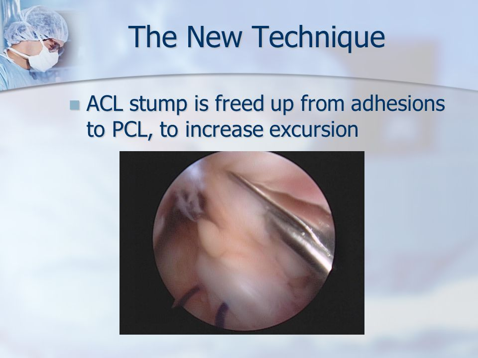 The New Technique ACL stump is freed up from adhesions to PCL, to increase excursion ACL stump is freed up from adhesions to PCL, to increase excursion
