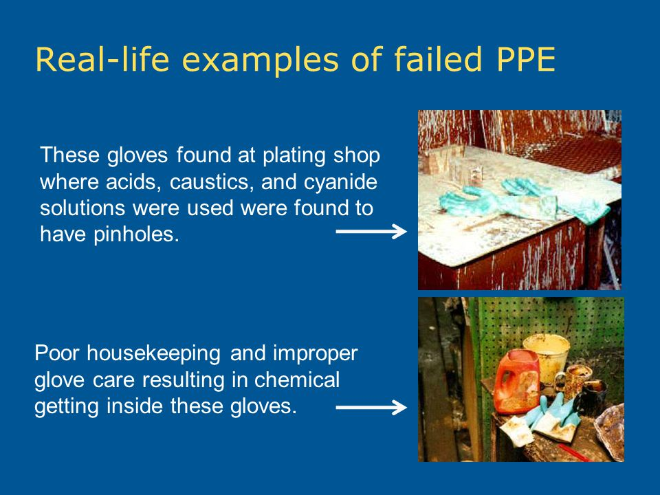 Real-life examples of failed PPE These gloves found at plating shop where acids, caustics, and cyanide solutions were used were found to have pinholes.