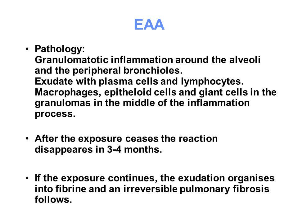 EAA Pathology: Granulomatotic inflammation around the alveoli and the peripheral bronchioles. Exudate with plasma cells and lymphocytes. Macrophages,