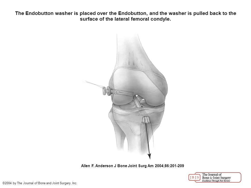 The Endobutton washer is placed over the Endobutton, and the washer is pulled back to the surface of the lateral femoral condyle.