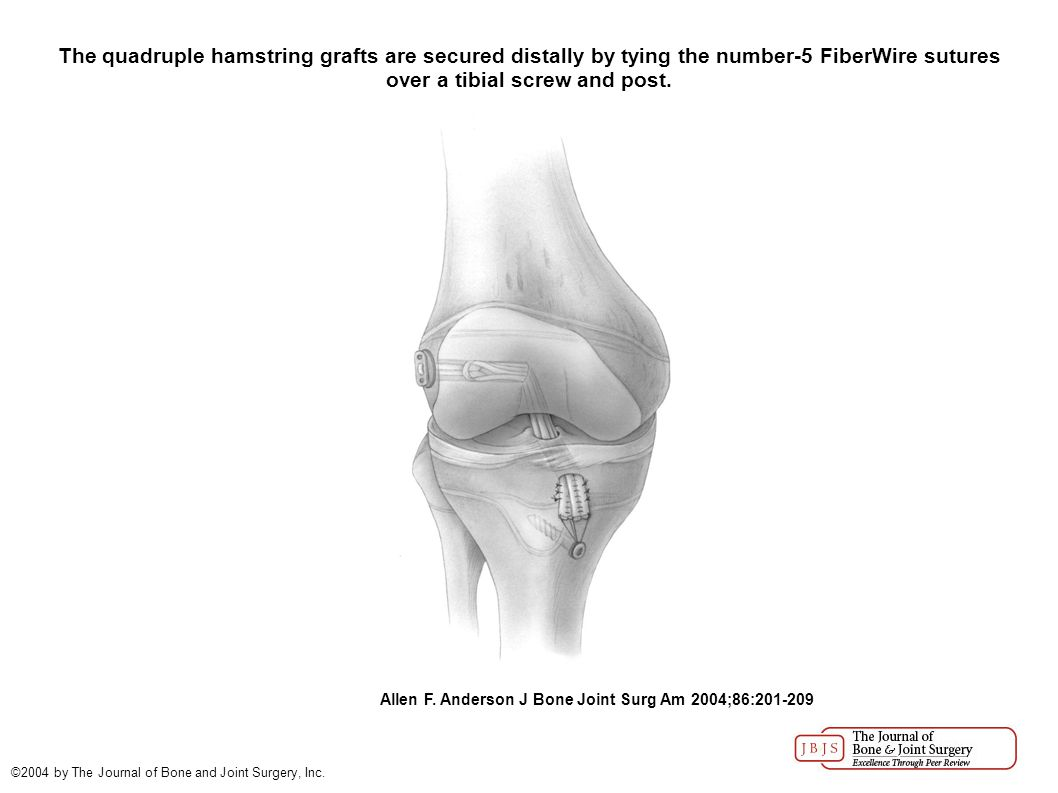 The quadruple hamstring grafts are secured distally by tying the number-5 FiberWire sutures over a tibial screw and post.