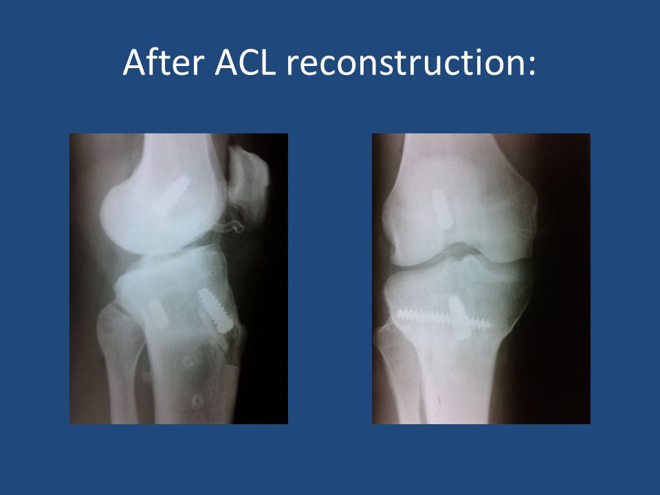 After ACL reconstruction: