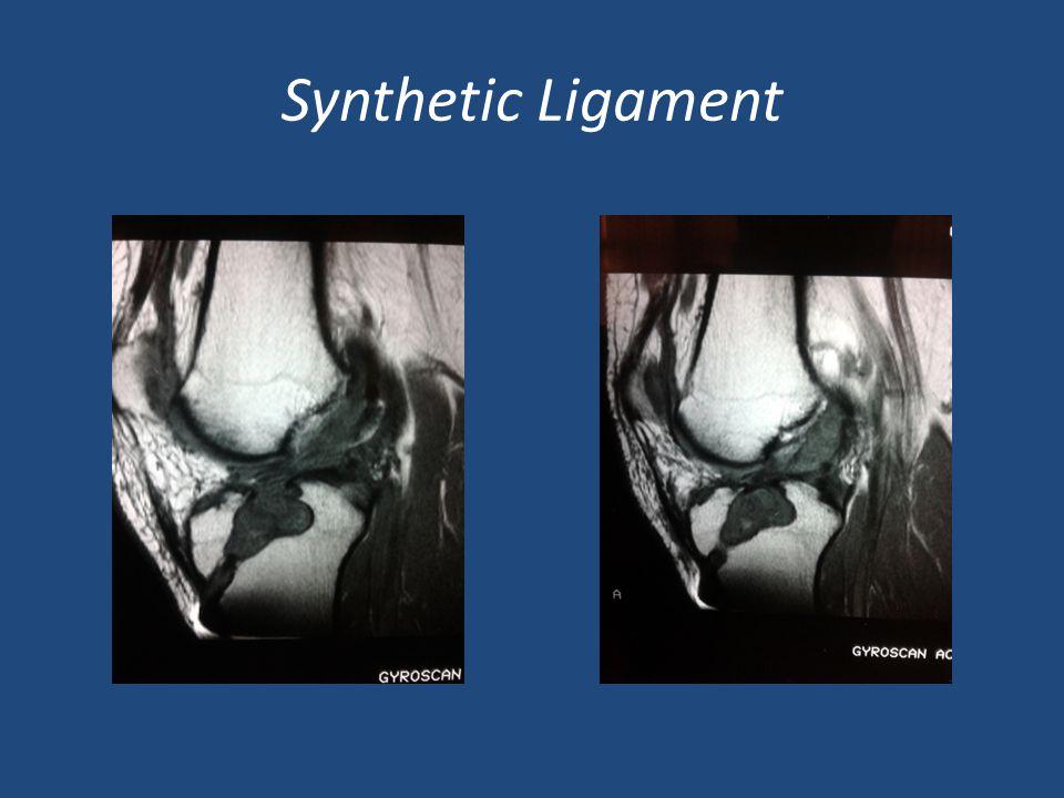Septic arthritis after Coagulase-neg.