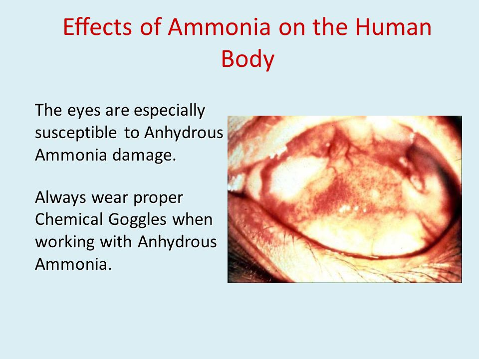 The eyes are especially susceptible to Anhydrous Ammonia damage.