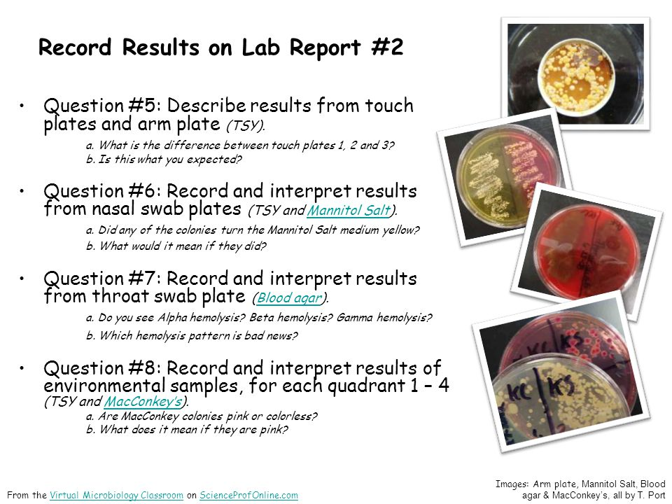 Record Results on Lab Report #2 Question #5: Describe results from touch plates and arm plate (TSY).