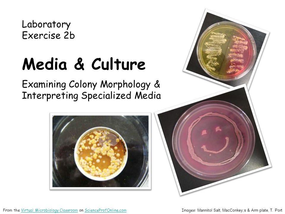 Laboratory Exercise 2b Media & Culture Examining Colony Morphology & Interpreting Specialized Media Images: Mannitol Salt, MacConkey;s & Arm plate, T.