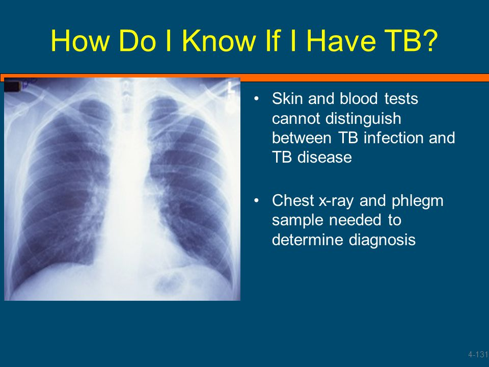 How Do I Know If I Have TB? Skin and blood tests cannot distinguish between TB infection and TB disease Chest x-ray and phlegm sample needed to determ