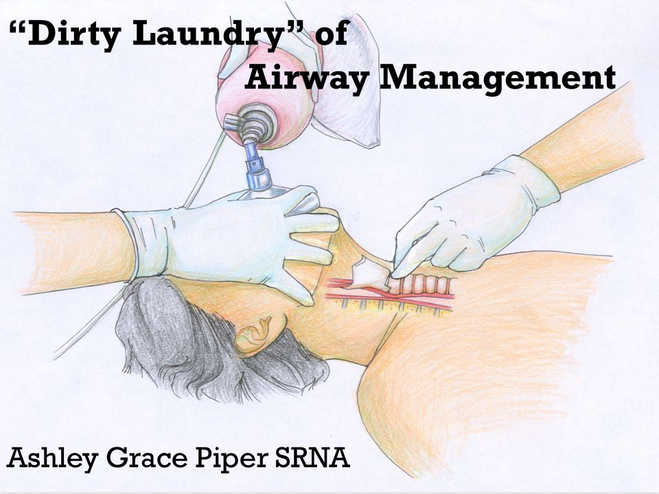 Dirty Laundry of Airway Management Ashley Grace Piper SRNA