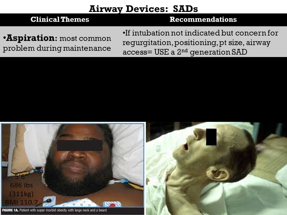 Airway Devices: SADs Clinical ThemesRecommendations Aspiration : most common problem during maintenance Non aspiration: due poor pt/operation selection, poor insertion Obesity, high aspiration risk, predicted DI, urgent surgeries If intubation not indicated but concern for regurgitation, positioning, pt size, airway access= USE a 2 nd generation SAD SADs deserve as much academic attention as tracheal intubation Still establish a airway strategy in the event the airway is lost (esp if SAD placed in a DI) Do not continue with a suboptimal airway