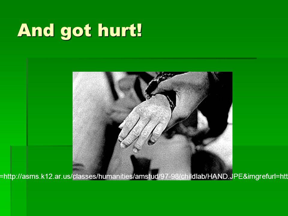 And got hurt.