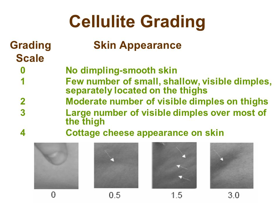 Cellulite Grading Grading Skin Appearance Scale 0No dimpling-smooth skin 1Few number of small, shallow, visible dimples, separately located on the thighs 2Moderate number of visible dimples on thighs 3Large number of visible dimples over most of the thigh 4Cottage cheese appearance on skin