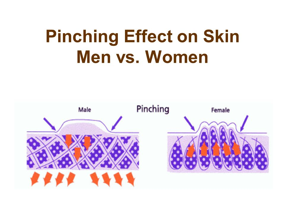 Pinching Effect on Skin Men vs. Women