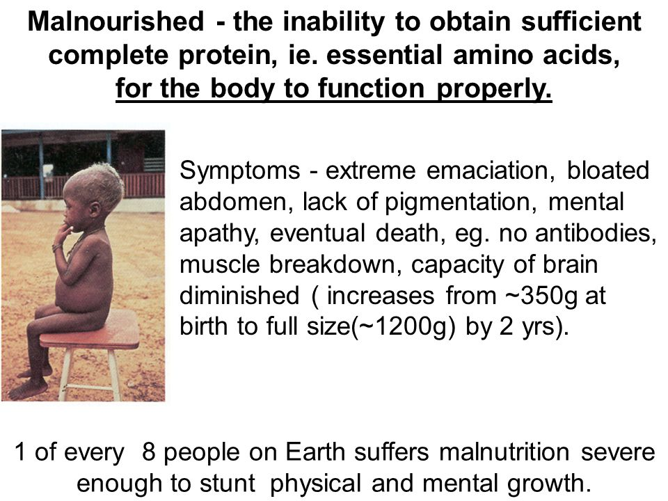 Malnourished - the inability to obtain sufficient complete protein, ie. essential amino acids, for the body to function properly. Symptoms - extreme e