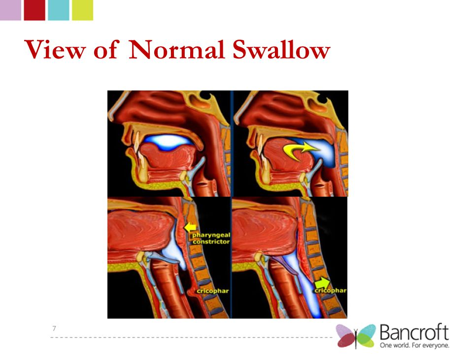 View of Normal Swallow 7