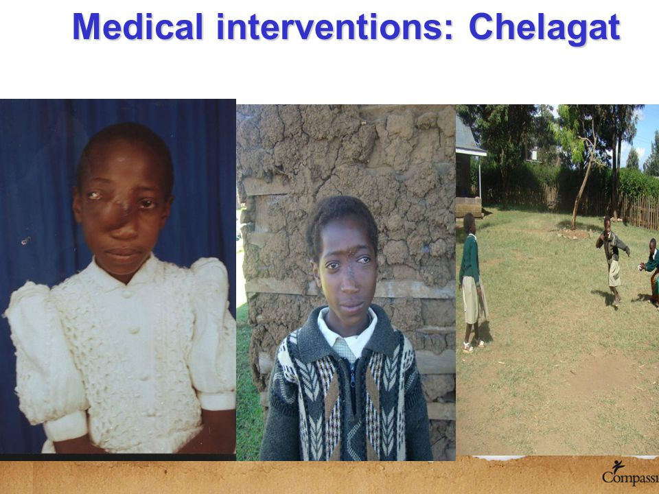 Medical interventions: Chelagat