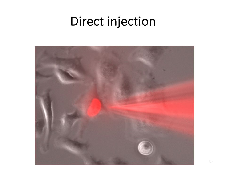 Direct injection 28