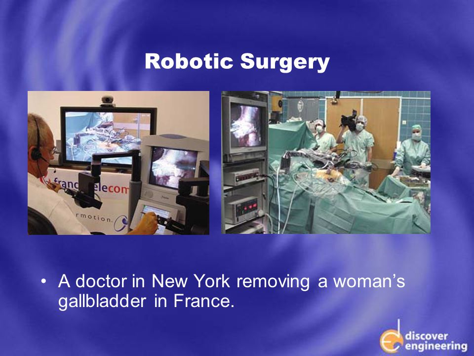 ECSE Department Programs Robotic Surgery A doctor in New York removing a woman's gallbladder in France.