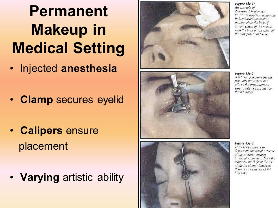29 Permanent Makeup in Medical Setting Injected anesthesia Clamp secures eyelid Calipers ensure placement Varying artistic ability