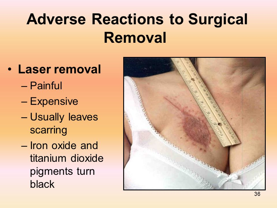 36 Adverse Reactions to Surgical Removal Laser removal –Painful –Expensive –Usually leaves scarring –Iron oxide and titanium dioxide pigments turn bla