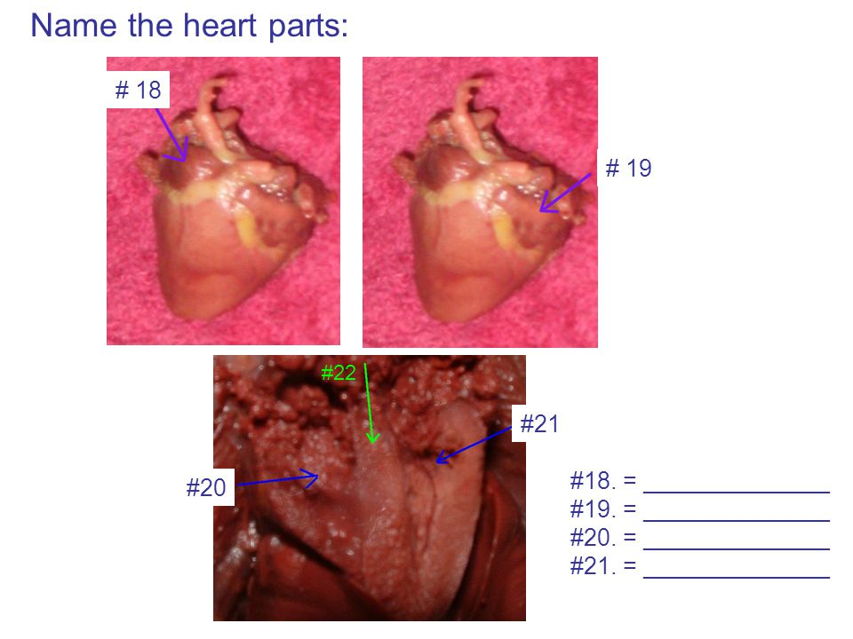 Name the heart parts: # 18 # 19 #20 #21 #22 #18. = ______________ #19. = ______________ #20. = ______________ #21. = ______________