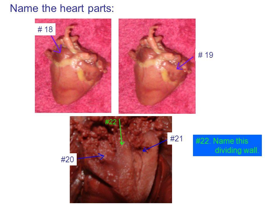 Name the heart parts: # 18 # 19 #20 #21 #22 #22. Name this dividing wall.