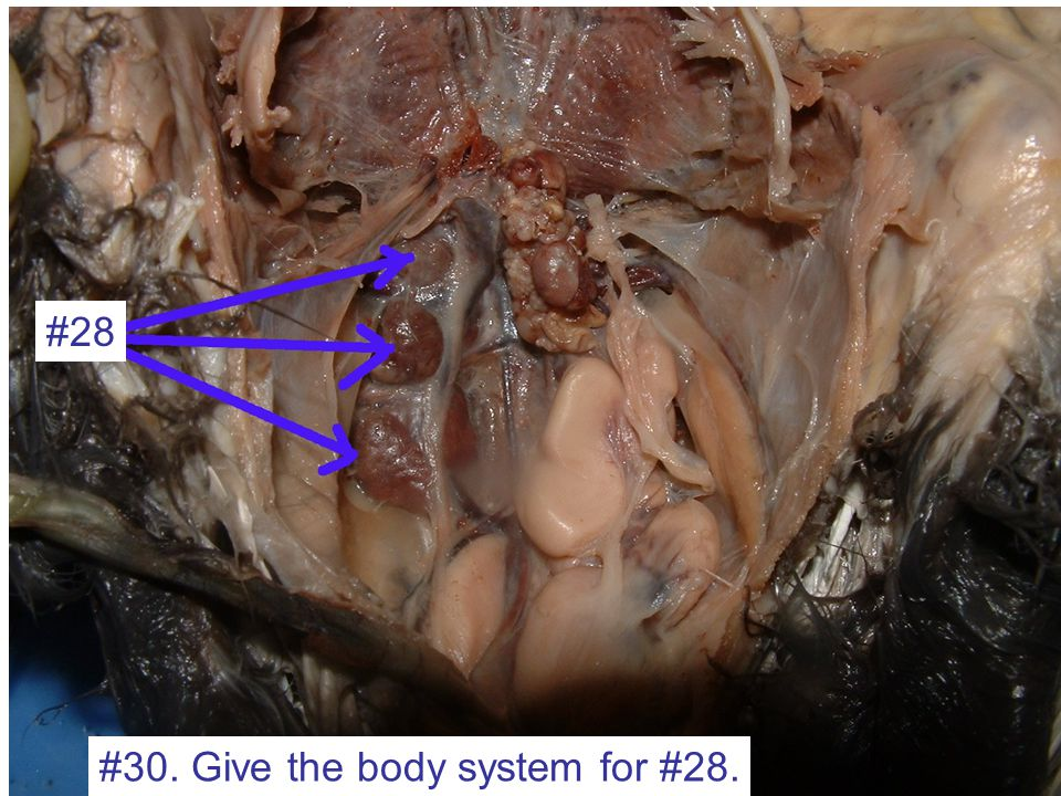 #30. Give the body system for #28. #28