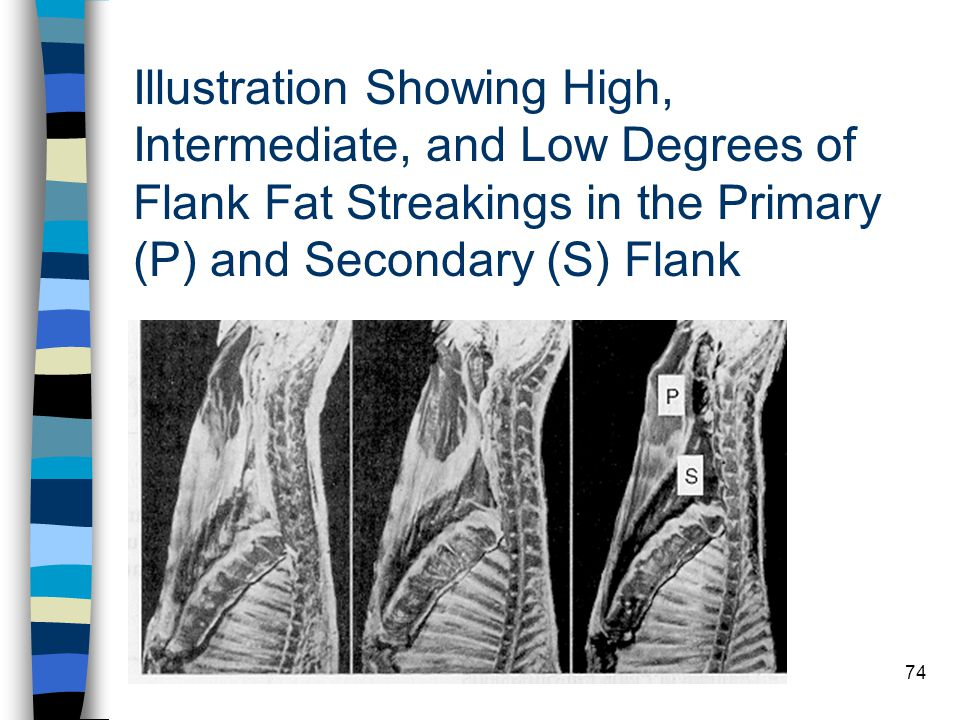 74 Illustration Showing High, Intermediate, and Low Degrees of Flank Fat Streakings in the Primary (P) and Secondary (S) Flank
